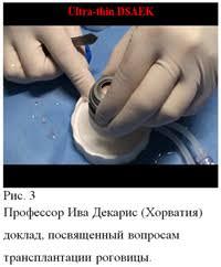 Современные технологии лечения патологии роговицы Обзор  Рис 3 Профессор Ива Декарис Хорватия доклад посвященный вопросам трансплантации роговицы