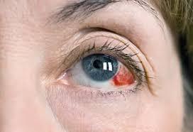 broken blood vessel in eye