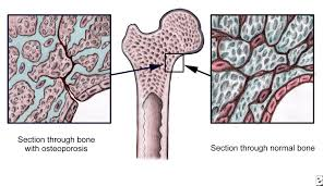 Osteoporosis Treatment Signs Symptoms