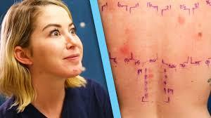 Women Get Makeup Allergy Tests - YouTube