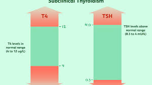 Why Subclinical Hypothyroidism May Increase Heart Disease Risk