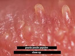 Causes of pimples on penis and treatment Whiteheads On Genitalia