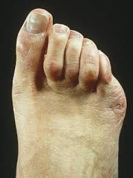10 Common Foot Problems Everyday Health