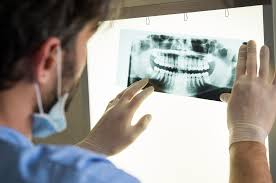 Most dental insurance covers preventive care dental insurance works a lot like health insurance. Becoming A Dentist 3 Things You Should Know Student World Online