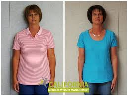 cmwm cal weight loss clinic in san antonio offers three step fast safe effective rapid weight loss programs