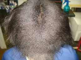 Resultado de imagem para cabelo danificado salão