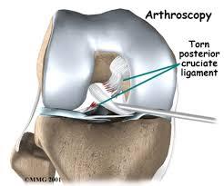 How to Heal a Bone Bruise Naturally   Dr  Axe Dr  Axe