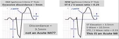 Mia 2012 Smith Sw Et Al Diagnosis Of St Elevation Myocardial