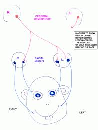 here for a diagram explaining why an upper motor neuron lesion affects only the lower face