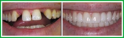Dental Bridge Kuala Lumpur | Whitesmile Orthodontic Dental Braces ...