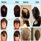 how to use ginseng for hair growth