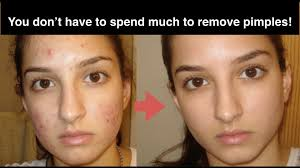 10 natural home remes to get rid of acne fast no more acne scars