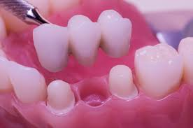 Dental Bridges | How They Work \u0026 What They Cost?