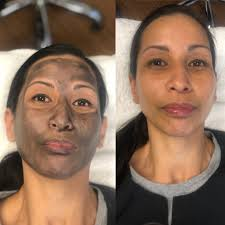 The Hollywood Laser Peel Also Known As The Carbon Spectrum