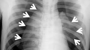 Pneumothorax X Ray Bilateral Pneumothoraces After Acupuncture Physicians Weekly