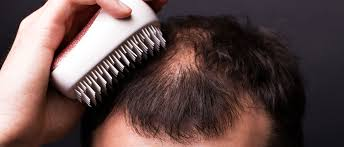 can testosterone boosters cause hair loss