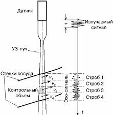 Допплеровские методы основы Рис 19 При коротком сигнале возможно получение информации о скоростях кровотока на отдельных участках сечения крупного сосуда в профиле сосуда