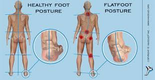 Flat Footed How Flat Feet Cause Poor Body Posture Mass4d Insoles And Foot