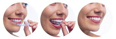 Image result for invisalign aligners