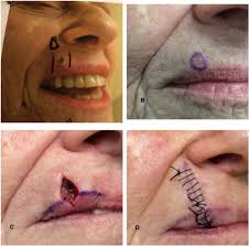 basal cell carcinoma a patient and