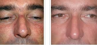 treatment for broken blood vessels or capillaries broken capillaries