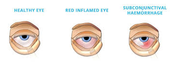 Eye Infections and Allergies - Jehan Aye Clinic