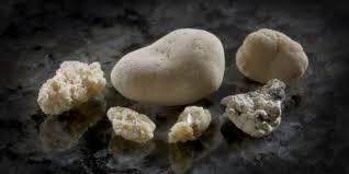 Imagini pentru pietre la rinichi