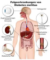 Altersdiabetes symptome