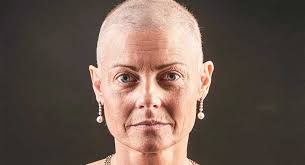 t cancer treatment and hair loss