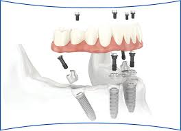 Abutment Definition Multi Unit Abutments When And How To Use Them Burbank Dental Lab