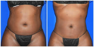 a flat stomach with liposuction