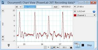 Lab Chart How Can I Add Comments In Labchart Adinstruments