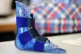 Prosthetic Design All About Innovation In Modern Prosthetics