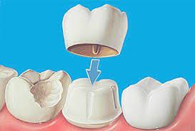 Картинки по запросу ортопедическая стоматология
