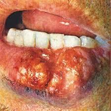 Рак нижней губы Реферат Рак нижней губы является довольно редким заболеванием с устойчивой тенденцией к снижению Так в России рак нижней губы составлял в 1995 году 1 5%