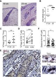 developing human skin conns