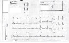 Electrocardiogram Ecg Ekg With Cardiac Arrhythmia Stock
