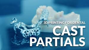 cast partials application 3d printing for dental