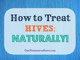 How to Treat Hives: Naturally! - Our Nourishing Roots