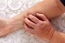 SCABIES PREVENTION AND CONTROL GUIDELINES