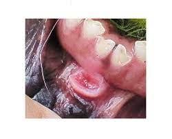 抗生 物質 口内炎
