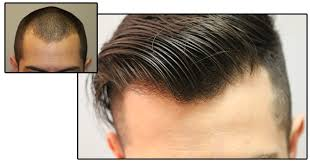 advanced hair restoration for men women fue fut hair transplant prp hair loss therapy