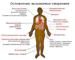 Ожирение болезнь xxi века Азбука здоровья image006