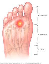 ball of foot pain. metatarsalgia ball of foot pain