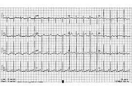 Ecg Chart Examples Six Abnormal Ecgs Not All Are Cases Of The Heart Slideshow