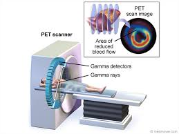 how a pet scan works coronary angiogram