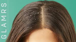 how to get rid of dandruff the ultimate hair care routine for dandruff and itchy scalp