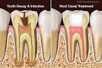 how to relieve root canal pain