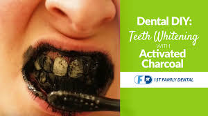 dental diy teeth whitening with activated charcoal