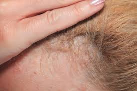 Scalp psoriasis: Symptoms, causes, and treatment